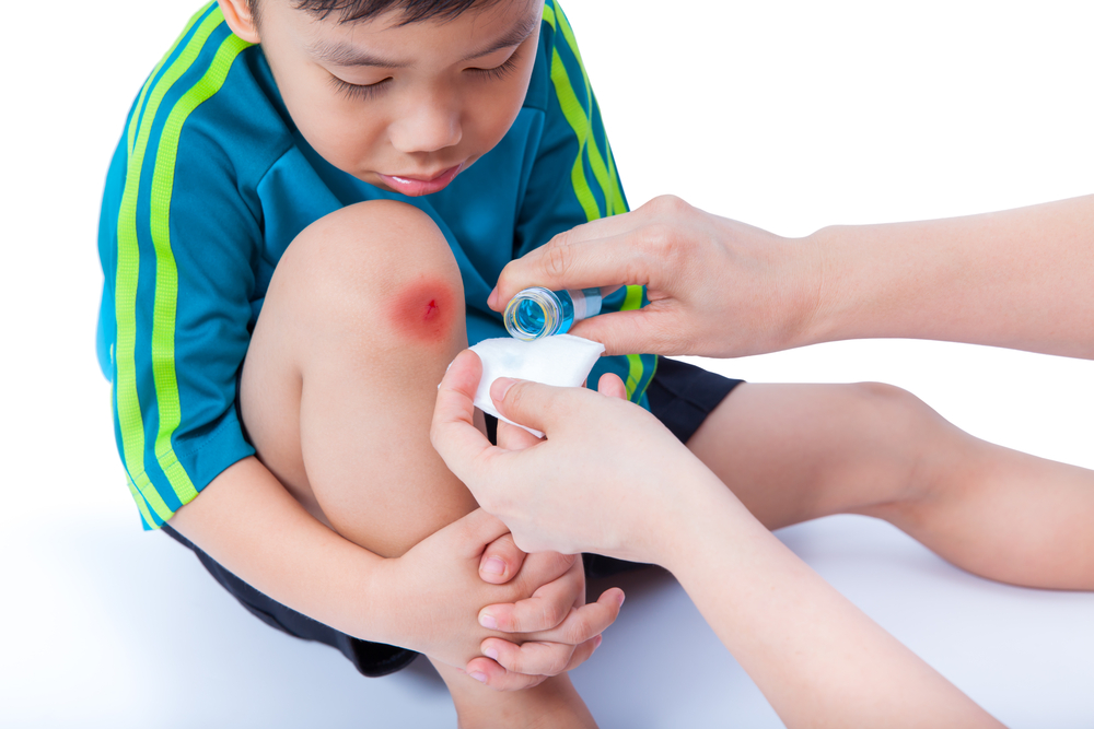 little boy with cut on knee
